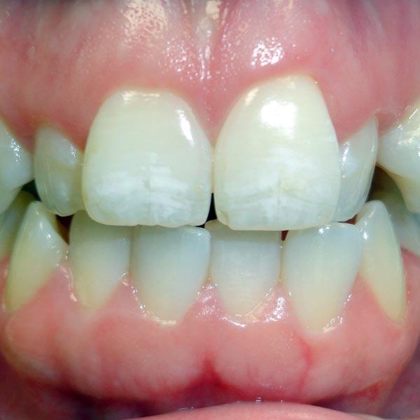 Invisalign Dentists Hudsonville, MI